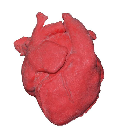 Pediatric Heart With Corrected Transposition Of Great Arteries and Ventricular Septal Defect VSD