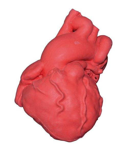 Pediatric Heart With Tetralogy Of Fallot