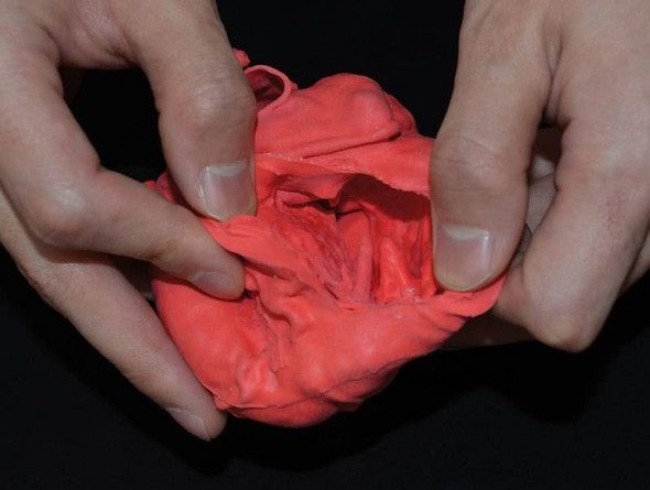 Pediatric Heart With Tetralogy Of Fallot 1