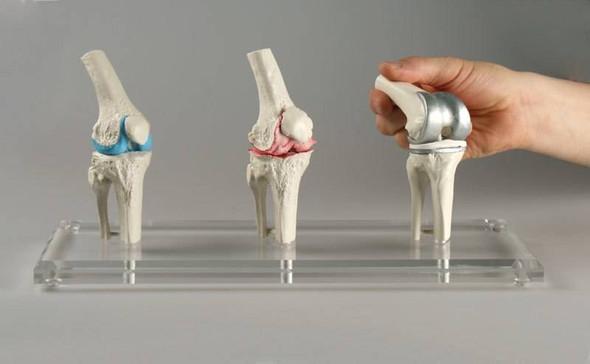 Knee Implant Model 1