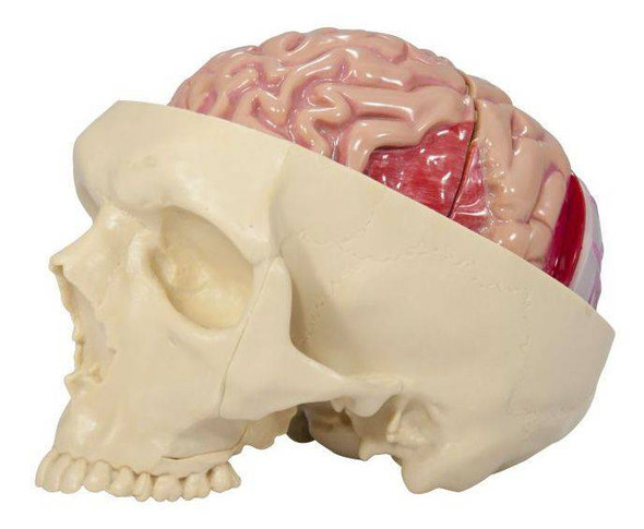 Diseased Brain In Skull Anatomy Model