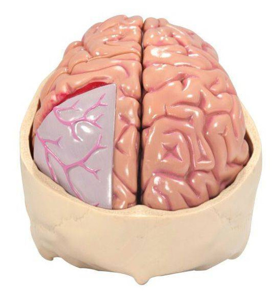 Diseased Brain In Skull Anatomy Model 1