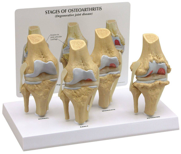 4 Stage Osteoarthritis Knee Set Anatomy Model
