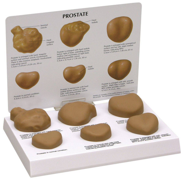 Life-Size Prostate Anatomy Model Set