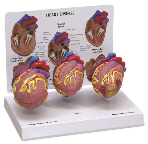 3 Piece Mini Heart Anatomy Models Set