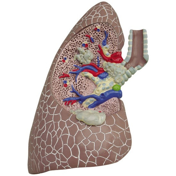 Diseased Lung with cancer and pathologies 1