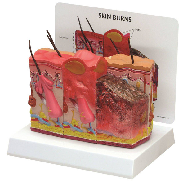 Skin Burn and Normal Skin Anatomy Model