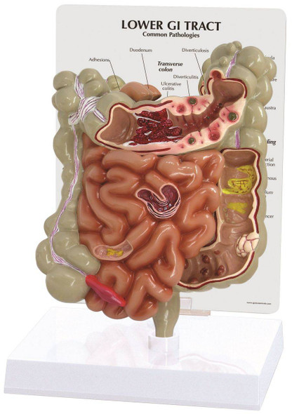 GI Tract Anatomy Model