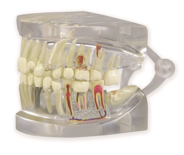 Clear Human Jaw with Teeth Anatomy Model