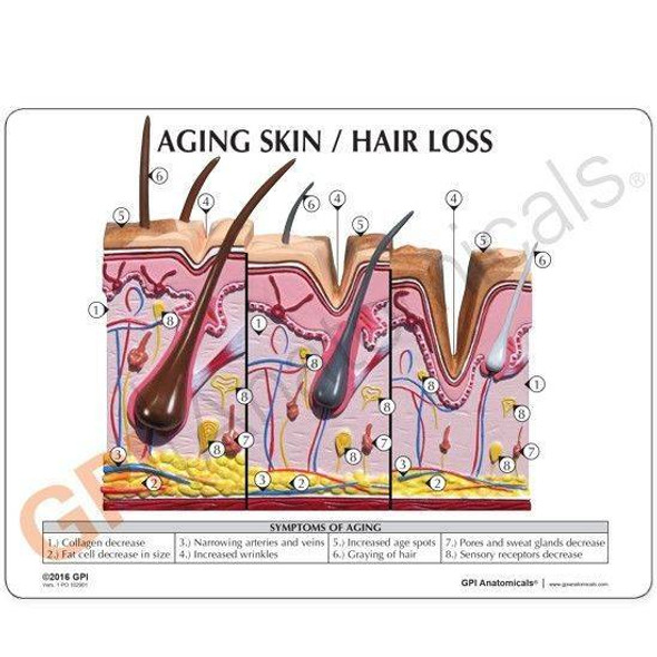 Aging Skin, Hair Loss and Normal Skin Anatomy Model 1