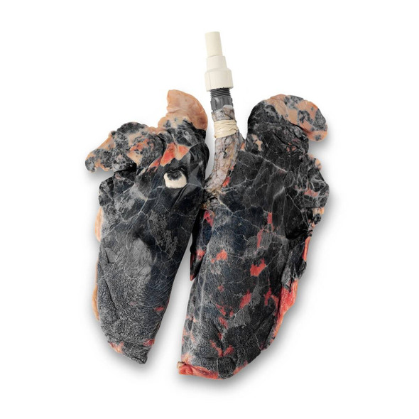 BioQuest Inflatable Lungs - Simulated Smokers Lungs, Preserved
