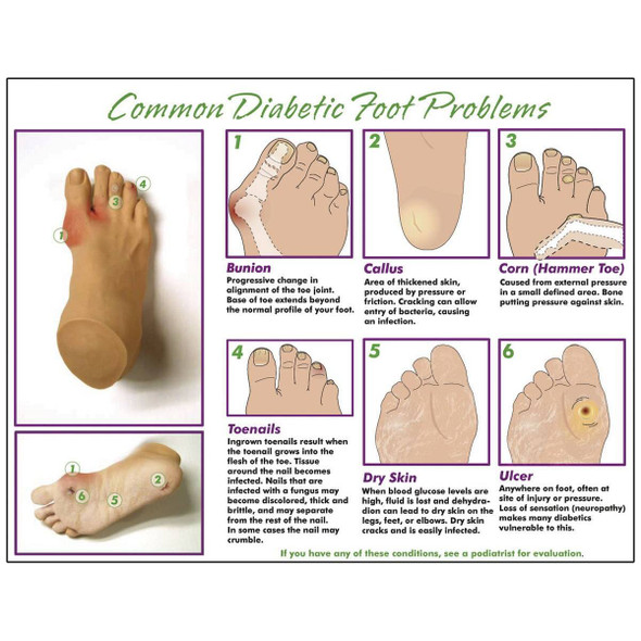 Nasco Common Diabetic Foot Problems TearPad 1