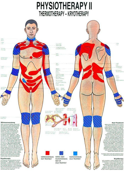 Thermotherapy and Kryotherapy Laminated Chart