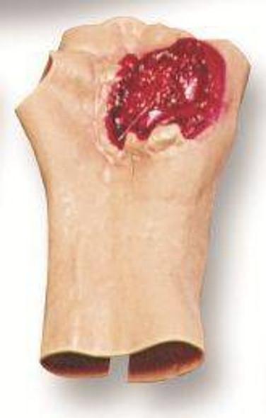 Gunshot Wound Of The Palm Model