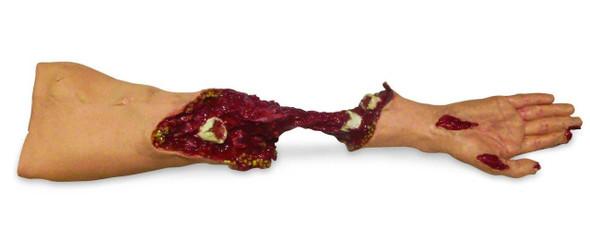 Xtreme Trauma Moulage Arm Model
