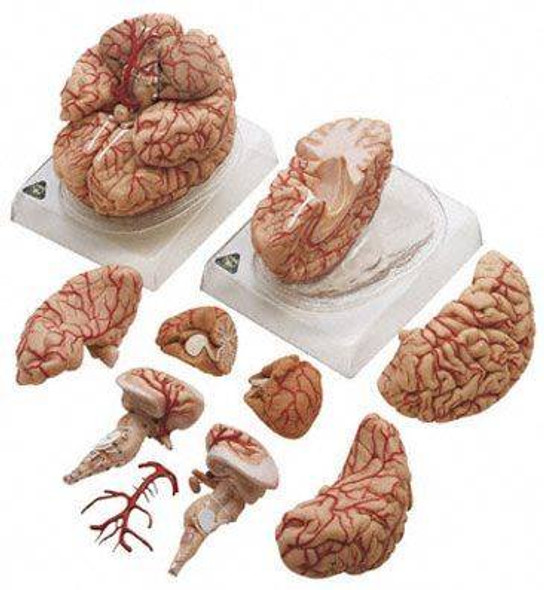 SOMSO Deluxe Brain with Arteries in 9 Parts