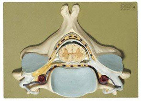 SOMSO Fifth Cervical Vertebra- 7x Life Size