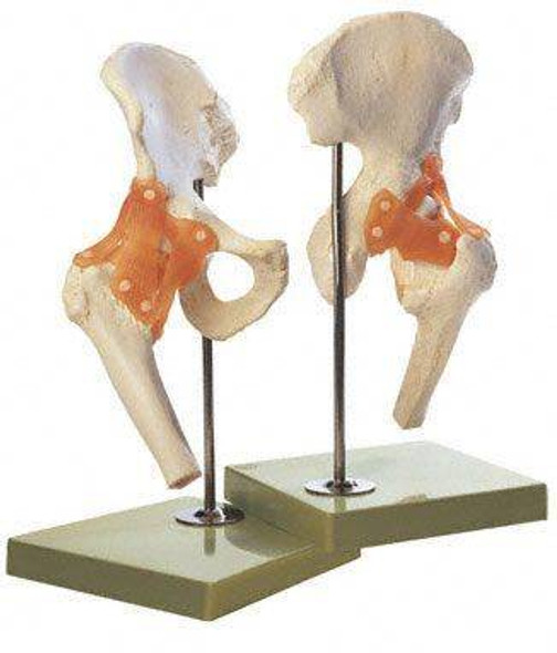 SOMSO Premium Functional Hip Joint Model