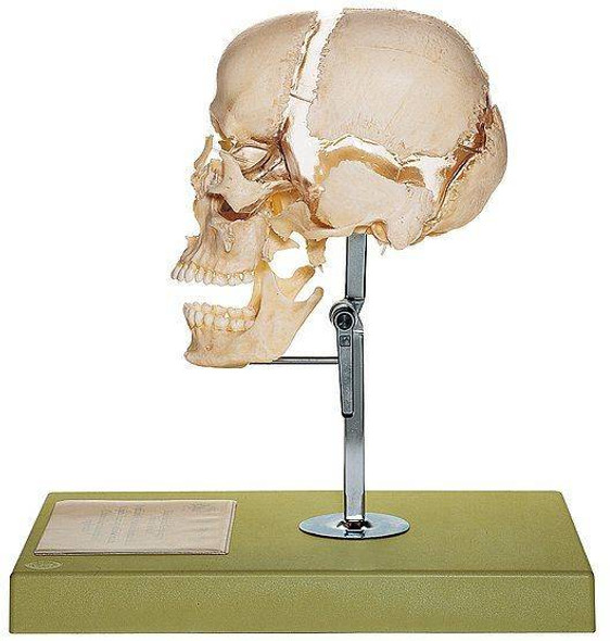 SOMSO Beauchene Adult Human Skull in 22 Parts
