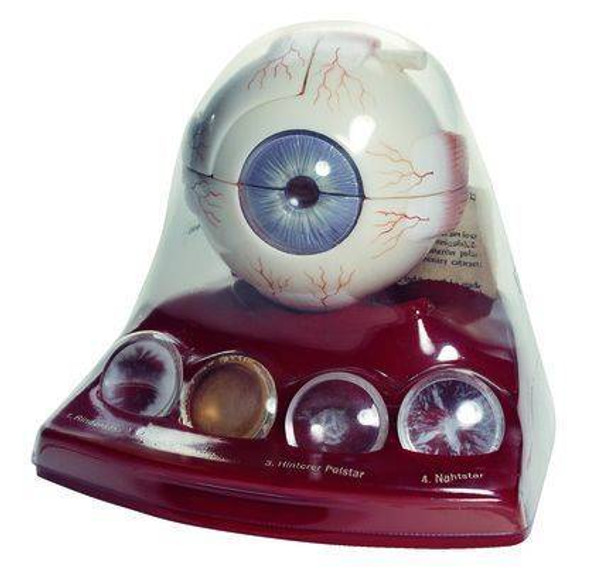 SOMSO Cataract Eye Model