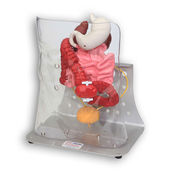 Otto Ostomy - Advanced Model with Case 1