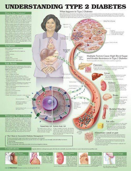 Understanding Type 2 Diabetes Laminated Anatomical Chart 2nd Edition
