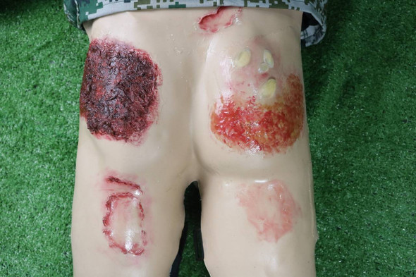 Anatomy Lab Moulage - Buttock Burn Injury