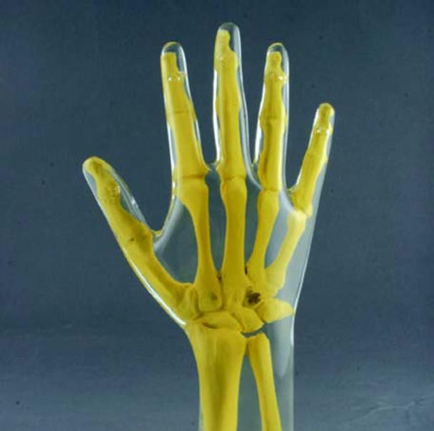Anthropomorphic Hand Phantom