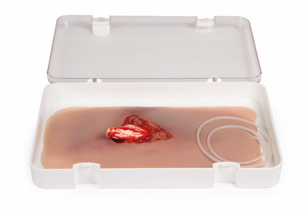 Leg Skin Moulage, Open Fracture Wound - Bleeding