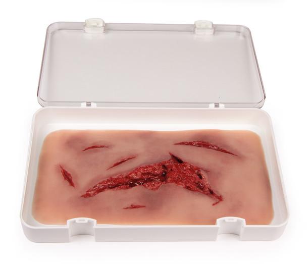 Skin Moulage, Large Laceration Wound - Bleeding