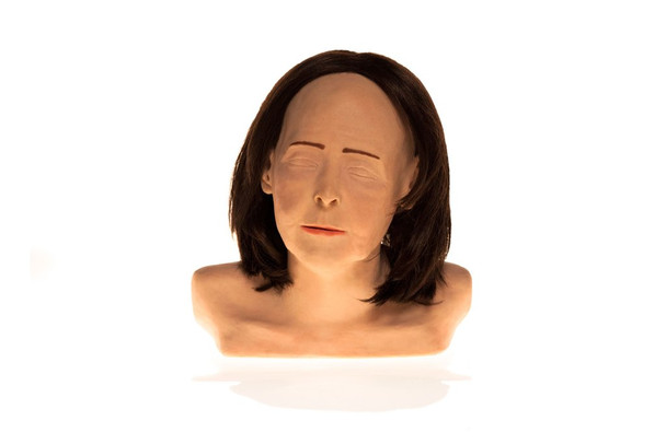 SimSkin Cosmetic Filler Training Model - Zsa Zsa - Front View of the Head and Shoulders