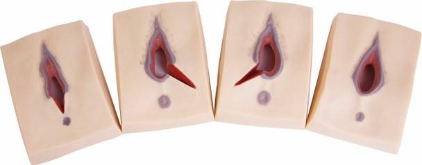Anatomy Lab Episiotomy Suturing Trainers