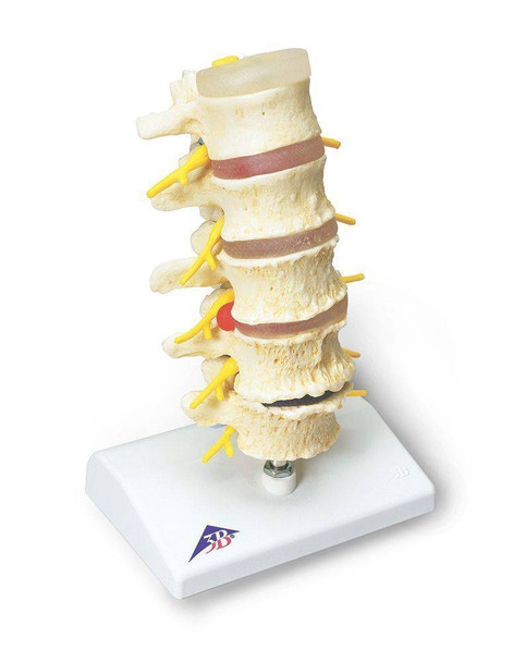 Stages Of Disc Prolapse and Vertebral Degeneration Anatomy Model