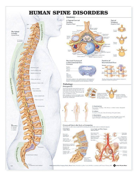 Human Spine Disorders Anatomical Chart - 2nd Edition