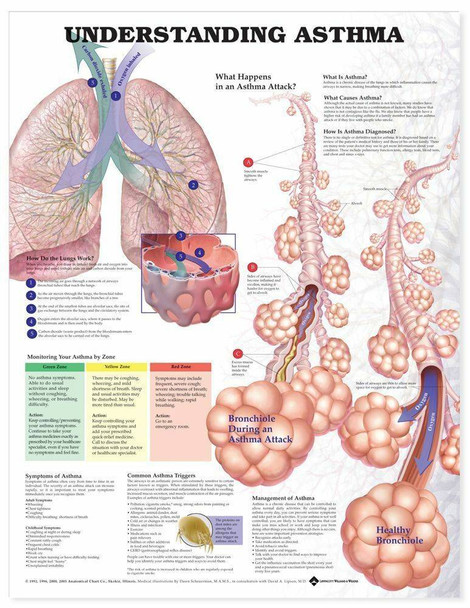 Understanding Asthma Laminated Anatomical Chart - 2nd Edition