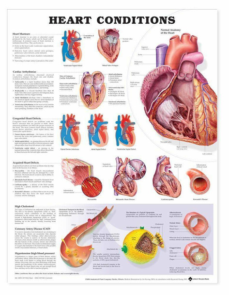 Heart Conditions Laminated Anatomical Chart