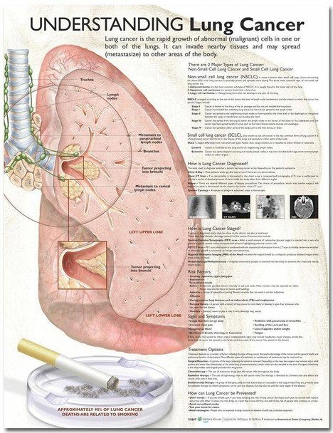 Understanding Lung Cancer Laminated Anatomical Chart