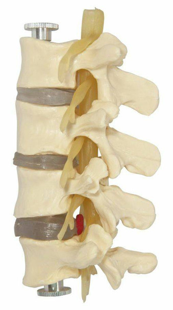 Budget Lumbar Vertebrae Anatomy Model 4 Parts