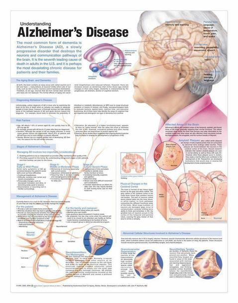 Understanding Alzheimers Laminated Anatomical Chart
