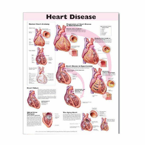Heart Disease Laminated Anatomical Chart - 2nd Edition