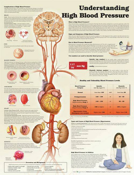 Understanding High Blood Pressure Laminated Anatomical Chart - 2nd Edition