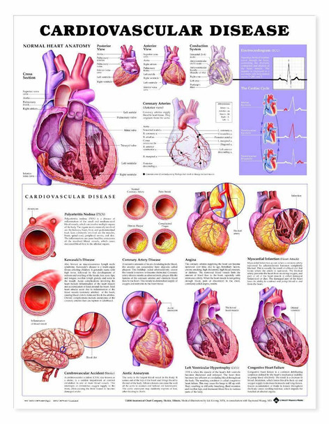 Cardiovascular Disease Laminated Anatomical Chart - 3rd Edition