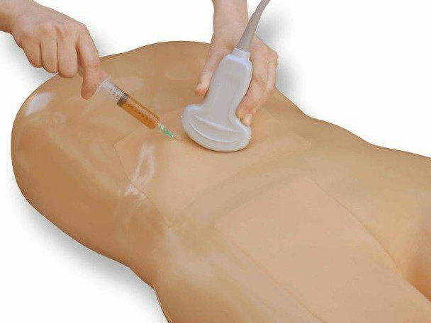 Paracentesis Ultrasound Training Model