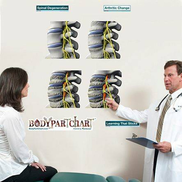 Spinal Degeneration Series Anatomy Dry-Erase Sticky Wall Chart - 27 in x 40 in