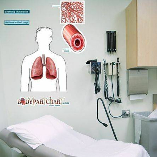 Asthmatic Lungs Labeled Anatomy Dry-Erase Sticky Wall Chart - 27 in x 40 in