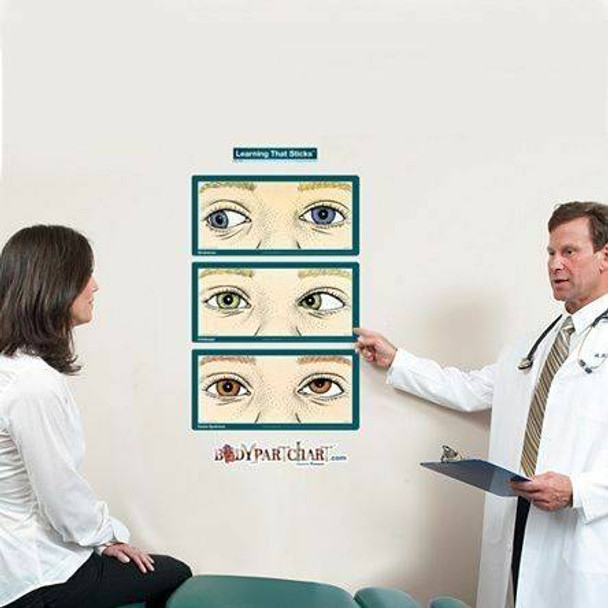 Strabismus, Amblyopia, and Duane Syndrome Labeled Dry-Erase Sticky Wall Chart - 27 in x 40 in