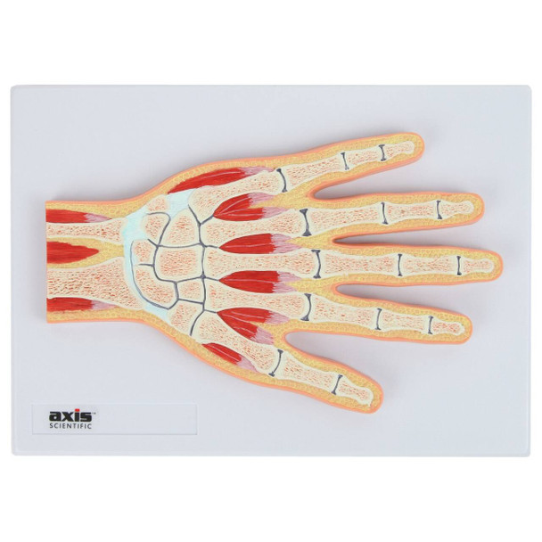 Axis Scientific Hand and Wrist Joint Section Anatomy Model