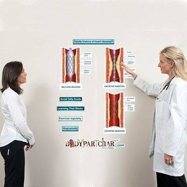 Angioplasty Series Labeled Anatomy Dry-Erase Sticky Wall Chart - 54 in x 40 in