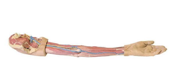 3D Printed Superficial Dissection of the Upper Limb