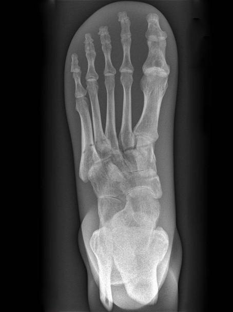 X-Ray Phantom Foot, Opaque